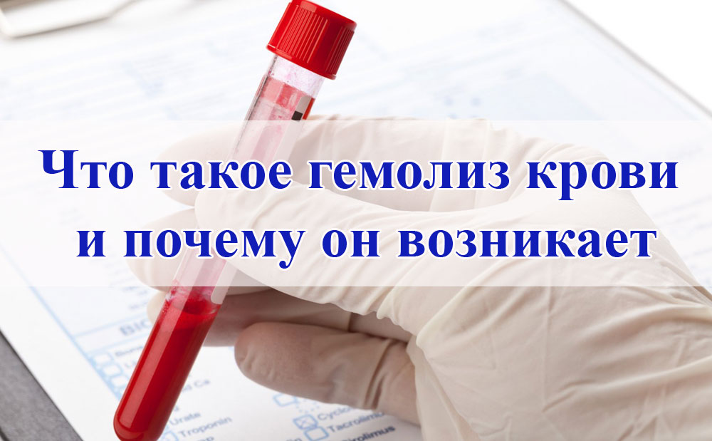 chto takoe gemoliz krovi - Causes of symptoms and treatment of hemolysis of blood in men and women