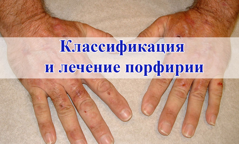 Классификация и лечение порфирии