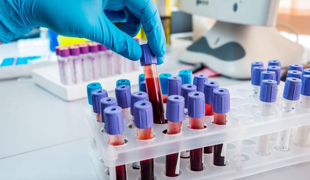 Лабораторное исследование крови анализ