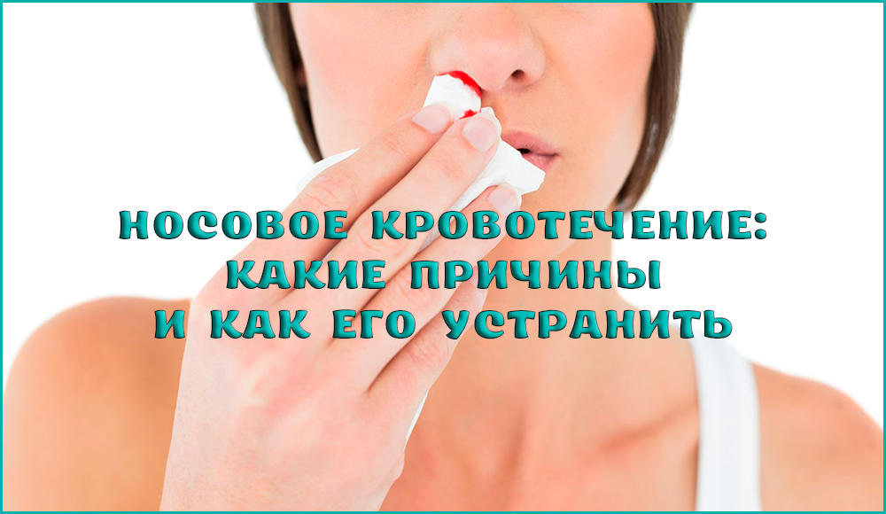 Методы остановки носового кровотечения и его причины