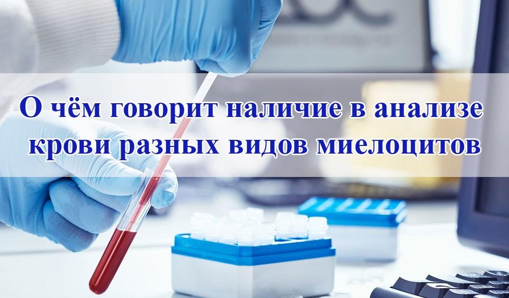 Наличие в анализе крови разных видов миелоцитов