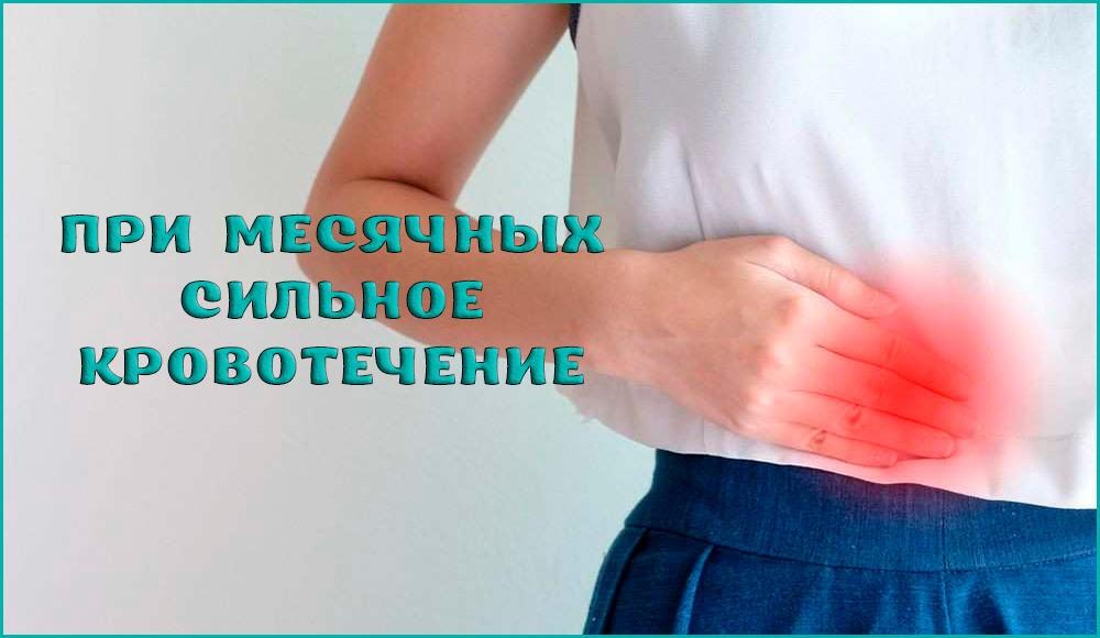 Что делать, если во время месячных идёт сильное кровотечение