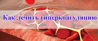 Как лечить гиперкоагуляцию
